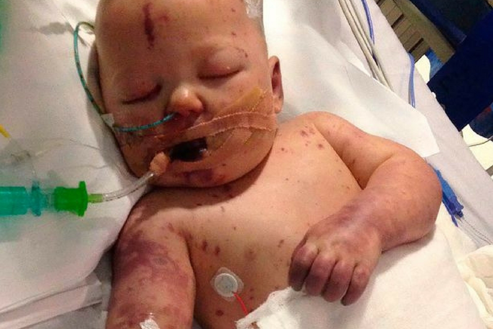 Opublikowała zdjęcie z umierającym synkiem. Chce w ten sposób ostrzec innych rodziców