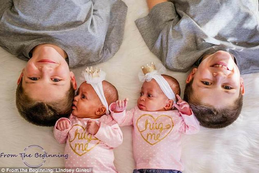ciąża bliźniacza, bliźnięta jednojajowe