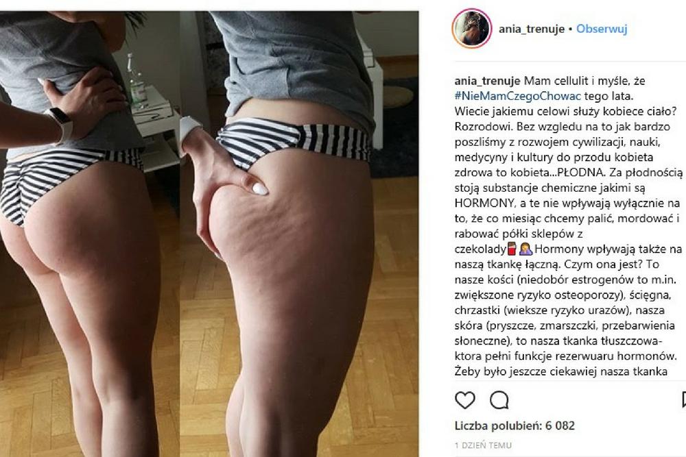 ania trenuje, cellulit, cellulit na pośladkach