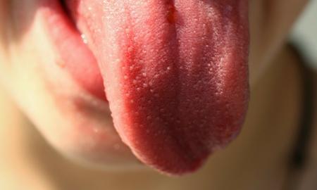 język a zdrowie, język a choroby, wygląd języka, kolor języka