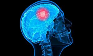 mózg nastolatka, demencja, choroba alzheimera
