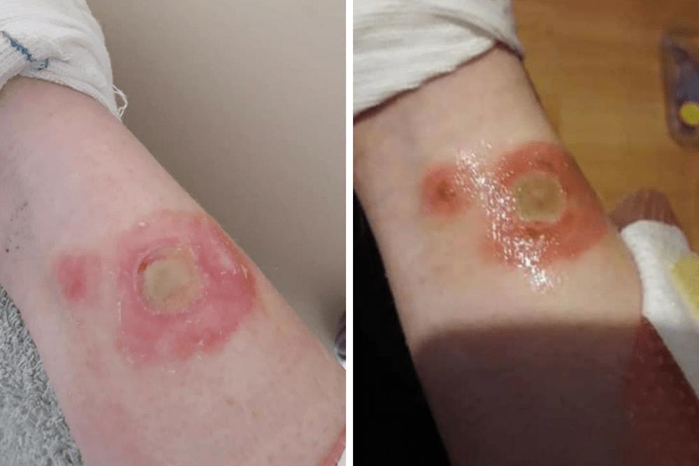 dezodorat challenge, niebezpieczne wyzwanie