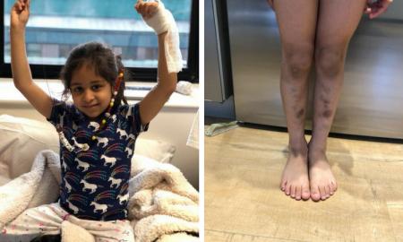 białaczka u dzieci, rak u dzieci, siniaki na nogach, przyczyny siniaków