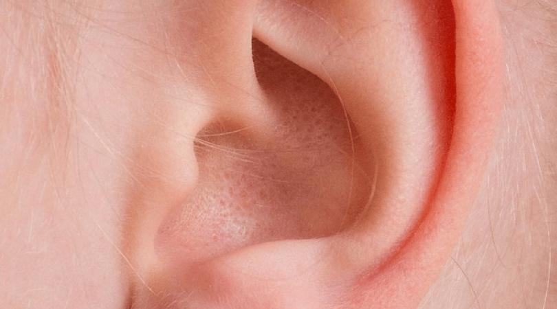 znak franka, udar mózgu, wygląd ucha