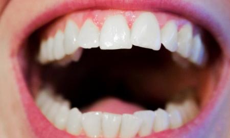 wada zgryzu, aparat ortodontyczny, nowa moda