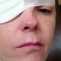 Rachel Foulkes-Davies, ukąszenie przez kleszcz, ugryzienie przez kleszcza, kleszcza a paraliż