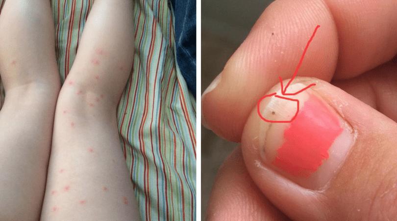larwy kleszczy, ukąszenie przez kleszcza, usuwanie kleszczy, Beka Setzer