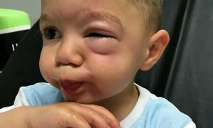 Hannah Neville, reakcja alergiczna, alergia na orzechy, lidl,