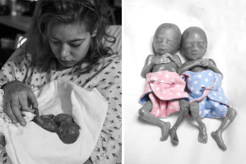 Desiree Buhrow-Olson, ciąża bliźniacza, martwe bliźniaki, strata dziecka