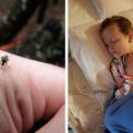 ugryzienie przez komara, komar choroby, ukąszenie przez komara, wirusowe zapalenie mózgu