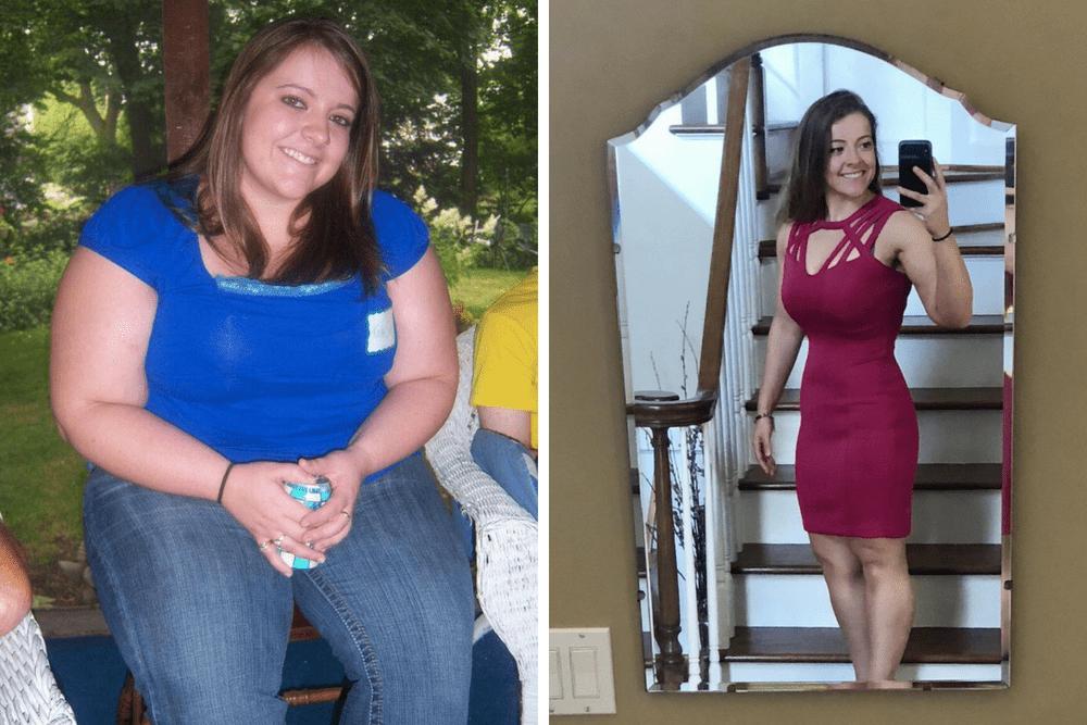 kayla sue cody, jak schudnąć, operacja zmniejszenia żołądka, liczenie kalorii
