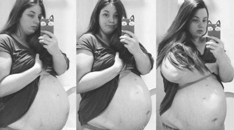 Chloe Dunstan, ciąża mnoga, brzuch w ciąży, koibeta w ciąży