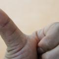 kciuk, dmuchanie w kciuka, sposoby na stres, jak zredukować stres, stres sposoby