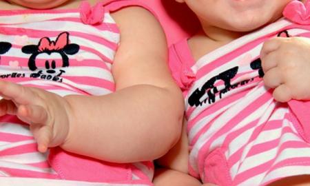 różne bliźniaczki, nietypowe bliźniaki, ciąża bliźniacza