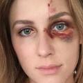 Melissa Gentz, przemoc, pobicie
