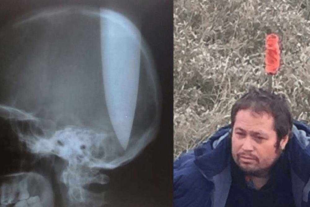 41-latek wbił nóż w głowę, nóż w głowie, operacja