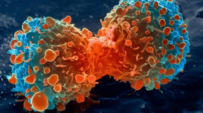 rak, jedzenie, które chroni przed rozwojem raka, nowotwór