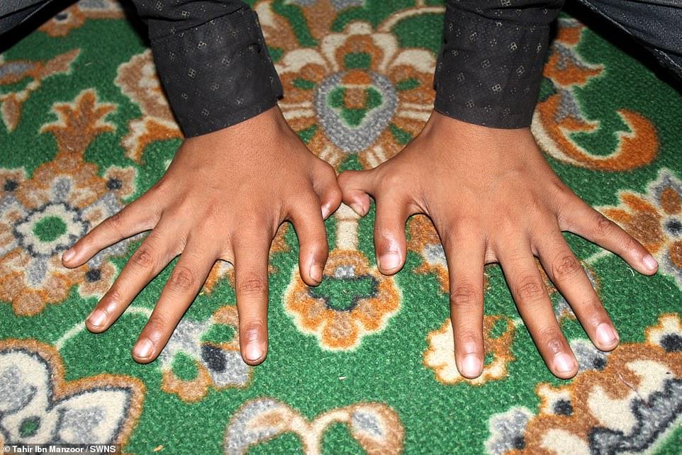 palców